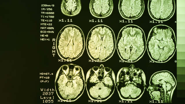 Huntington's disease: 'a lot of misunderstanding due to unfamiliarity' |  1 Limburg