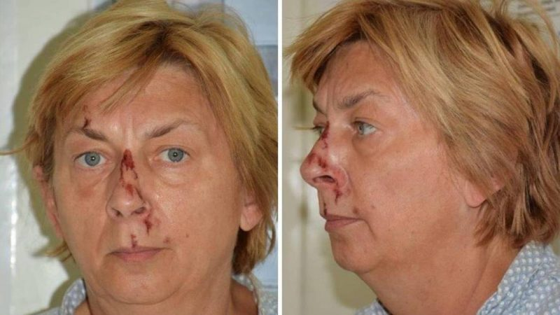 An injured woman crying on the rock can't remember who she is and the police in Croatia are baffled |  Abroad